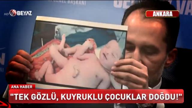 """Türkei: Kein Impfstoff, sondern ein """"Gene Changer"""" – Es sollen aufgrund der Impfung einäugige Kinder geboren worden sein"""